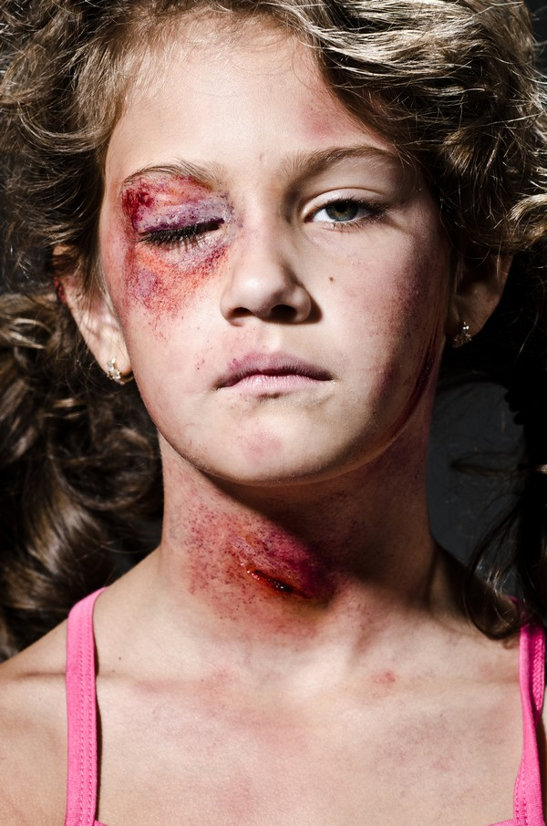 hvad er straffen for at slå børn